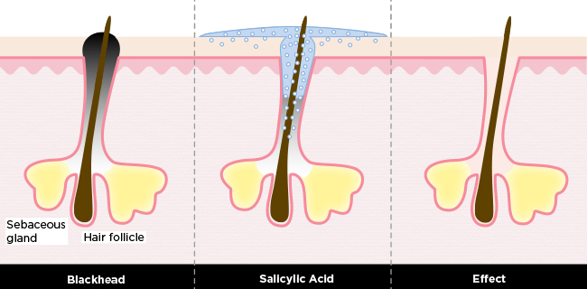 Treating Skin with Salicylic Acid