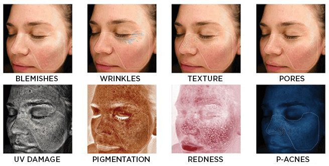 Skinwiser face examples
